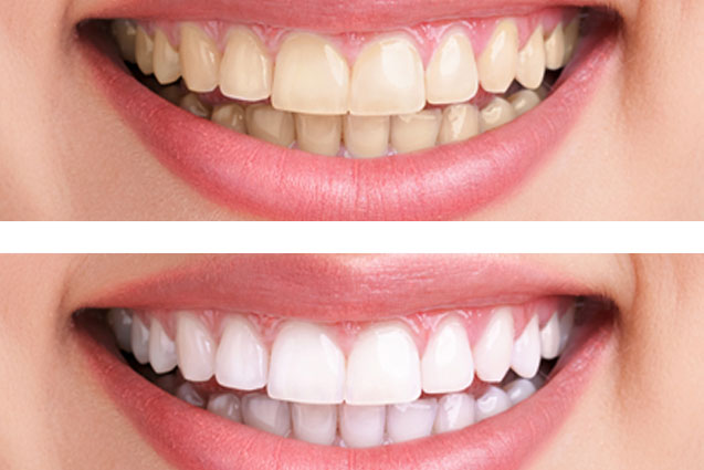 Chattanooga dentist, teeth whitening, Hixson dentist, teeth whitening